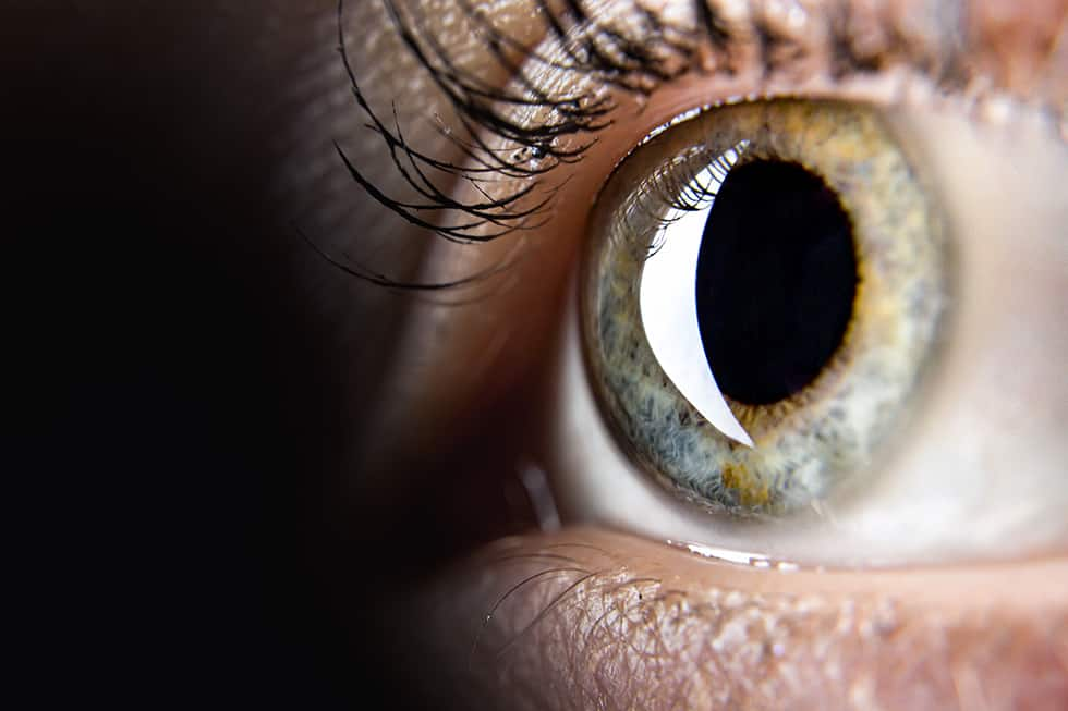 Corneal Disease, Treatment, and Surgery